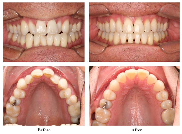 Invisalign Dent All By Drz